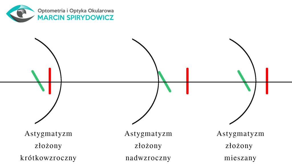 Astygmatyzm-złożony