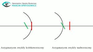 astygmatyzm-zwykly-krotkowzroczny-nadwzroczny