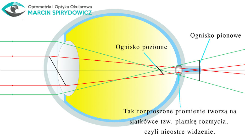Oko-astygmatyzm-optometria