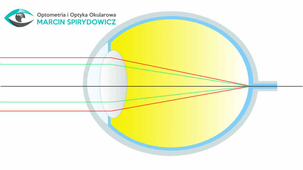 Optometria-oko-bez-astygmatyzmu
